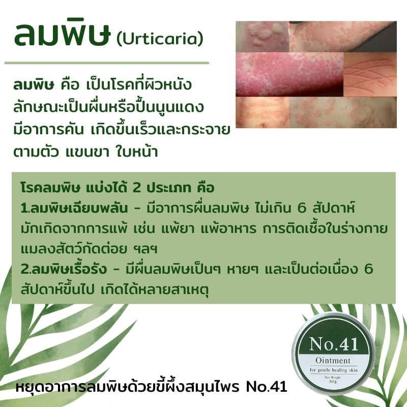 โรคผิวหนัง - ลมพิษ